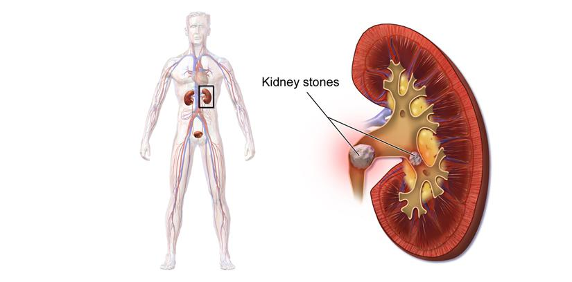 What causes Kidney Stone | Treatment & diet for a kidney stone patient - '4 minutes read'